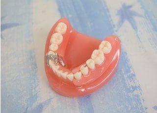 たかはし歯科医院_入れ歯・義歯4