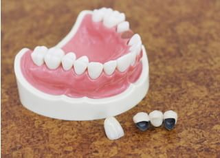 斉藤歯科医院_ご希望をに沿うためにさまざまな治療方法を準備