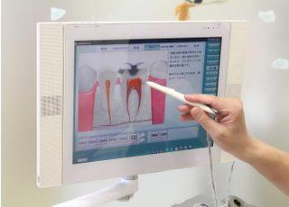 まえやま歯科医院_虫歯3