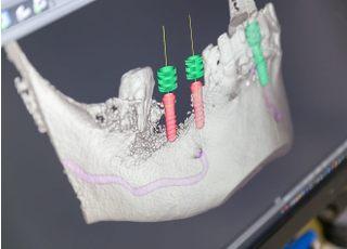 八幡歯科医院_インプラント3