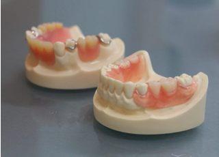 山本歯科医院_入れ歯・義歯2
