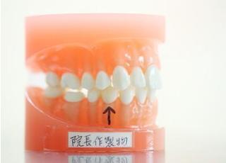 歯の模型です。