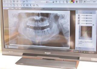 アキヨシメディカルクリニック(歯科)_親知らずの抜歯もお任せください