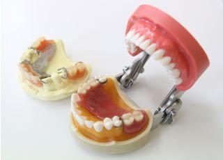 高野歯科クリニック入れ歯・義歯3