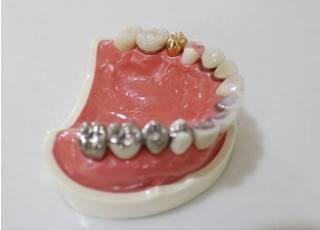 左海歯科クリニック_つめ物・かぶせ物3