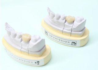 つつみ歯科医院被せ物・詰め物2