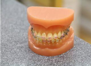 山の手歯科医院_矯正歯科2