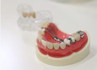 なみかわ歯科クリニック_被せ物・詰め物3