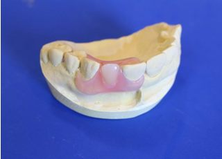 みやこ歯科_入れ歯・義歯4