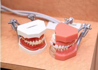 山根歯科医院 つめ物・かぶせ物