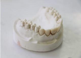 岡崎歯科医院_ホワイトニング2