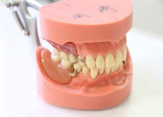 岡崎歯科医院_入れ歯・義歯4