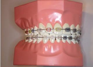 三條矯正歯科_ワイヤー矯正4