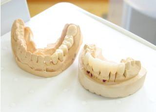 のむら歯科治療品質に対する取り組み3