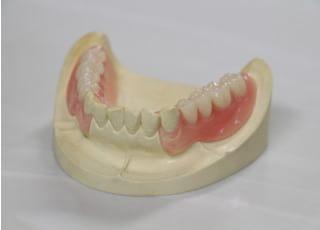 こはら歯科医院_しっかり噛める患者さんにあった治療を