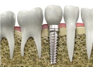 歯科ハーフムーン_インプラント2