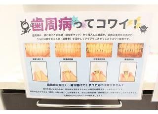 おがわ歯科クリニック歯周病3