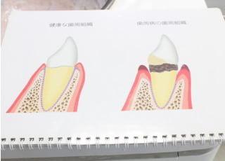 林ビル歯科クリニック(神奈川県川崎市)_治療の事前説明1