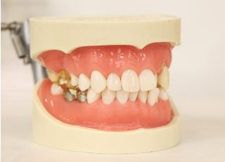 ながお歯科医院_つめ物・かぶせ物4