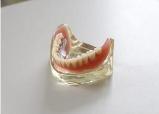 まぶち歯科医院入れ歯・義歯4