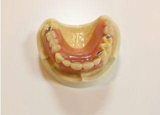 まつおか歯科クリニック(吉祥院長田町バス停前)_入れ歯・義歯3