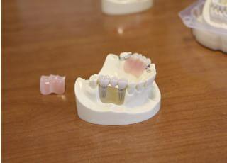森島歯科医院_インプラントを長くお使いいただくために