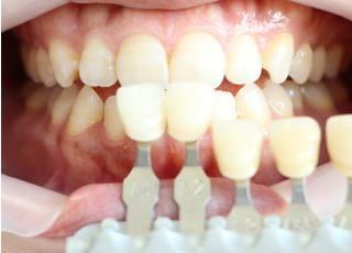 西崎歯科医院ホワイトニング4