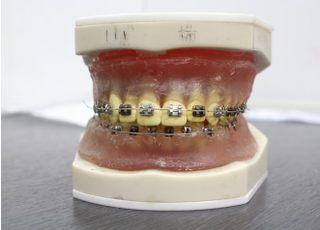 横山歯科・矯正歯科医院_矯正歯科3