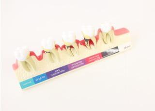 はやし歯科クリニック歯周病4