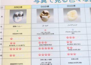 花香歯科医院_被せ物・詰め物4