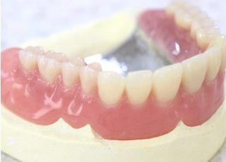 医療法人 近山歯科医院_入れ歯・義歯4