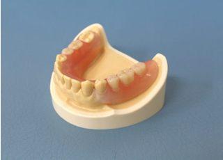 親和歯科医院_入れ歯・義歯3