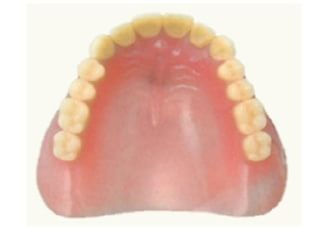 大手町歯科医院_入れ歯・義歯2