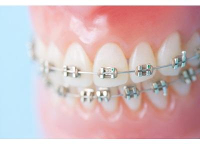 さくら歯科クリニック平塚 矯正歯科