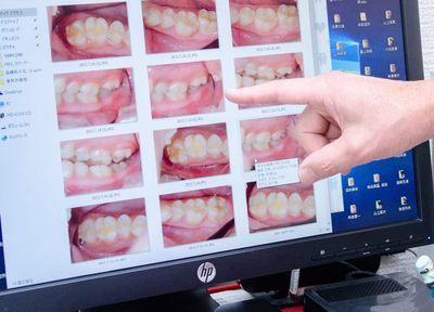 Q.歯周病の患者さまに対して、どのようなケアを行っていますか?
