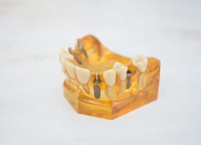 すずき歯科医院 インプラント