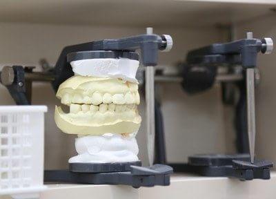 義歯なども作成しております。