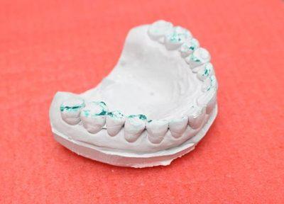 Q.入れ歯で噛み合わせを重視している理由は何ですか?