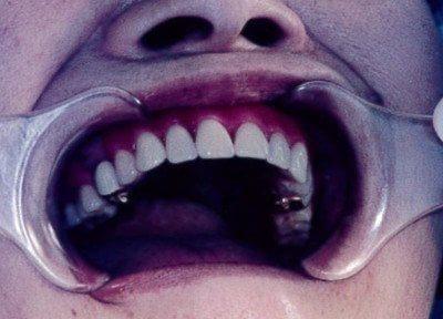 この義歯は非常に外れにくく、義歯も残った歯も20年持ちました(保険適用外)。