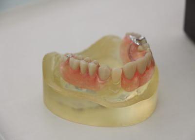 細かく検査をして、一人ひとりにあった長持ちする入れ歯を