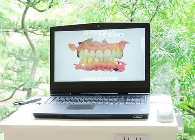 加来歯科_特徴3
