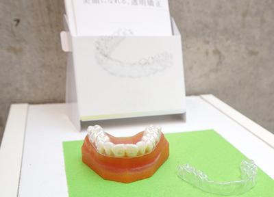 おうご歯科_特徴2