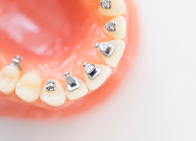 代々木駅前歯科 矯正歯科