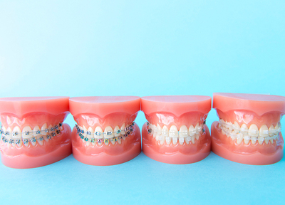 松戸ありす歯科 矯正歯科