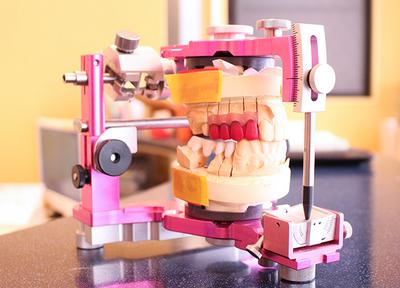 宮下歯科室 インプラント
