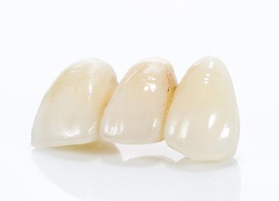 あい歯科クリニック 八王子_特徴2