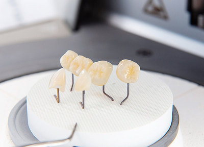 えがしら歯科 歯周・インプラント_特徴3