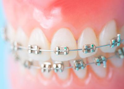 アベ歯科クリニック 小児矯正