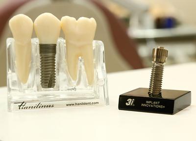 もりや歯科医院_特徴2