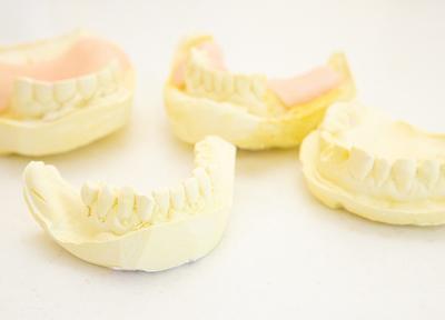 歯科技工士とのコミュニケーションが作製には不可欠です